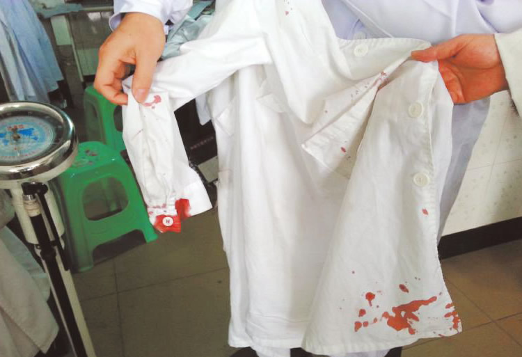 血渍衣物 血渍器械